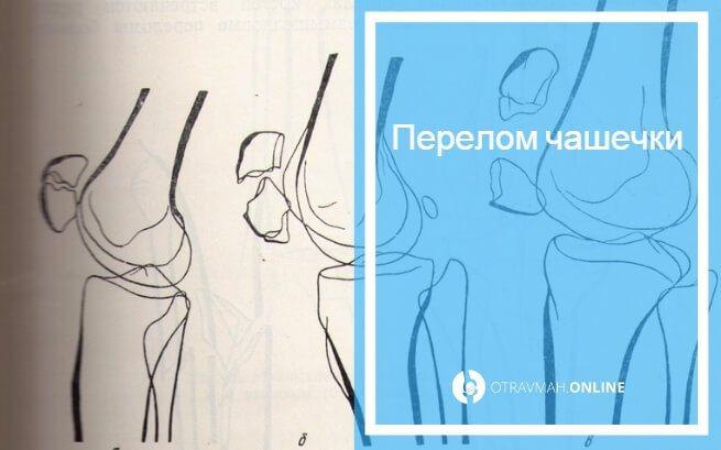 компрессионный перелом коленного сустава это