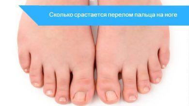 сколько срастается перелом пальца на ноге