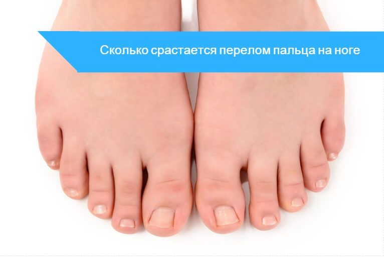 Перелом пальца на ноге сколько срастается - со смещением и без ...