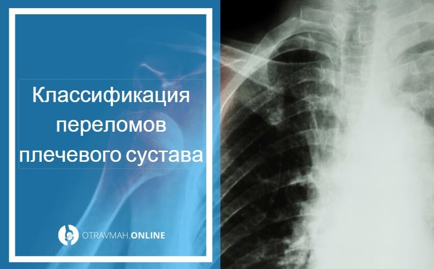 перелом плечевого сустава лечение реабилитация