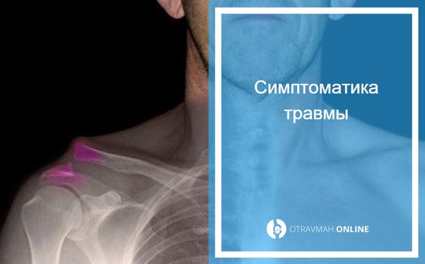 лечение перелом плечевой кости без смещения лечение