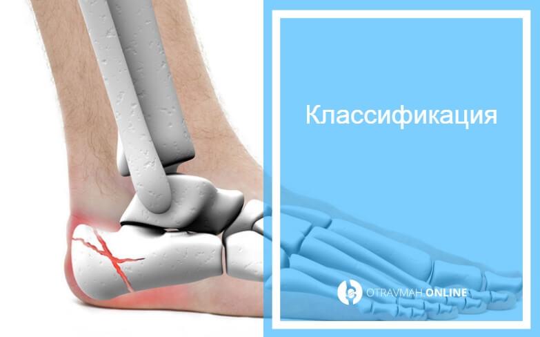 лечение перелом пяточной кости со смещением
