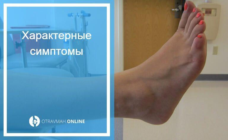 перелом пяточной кости со смещением лечение