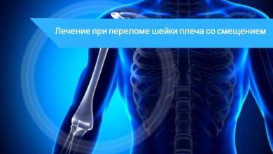 перелом со смещением шейки плеча