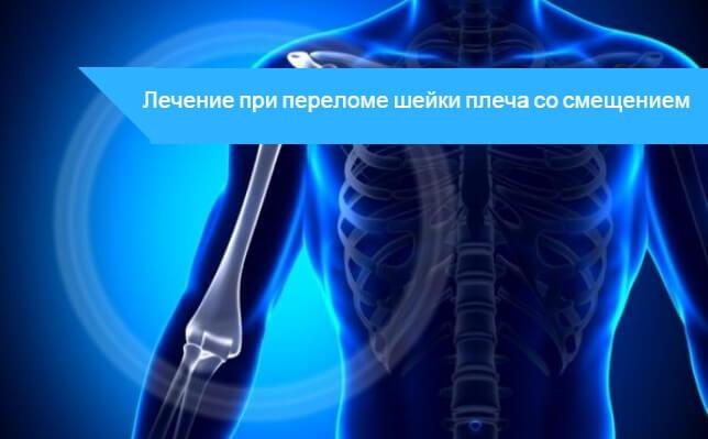 Перелом шейки плеча со смещением