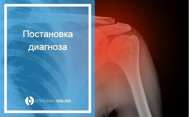 перелом хирургической шейки плеча со смещением отломков