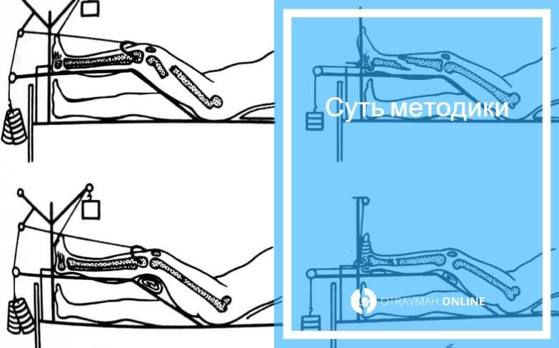 вытяжка ноги при переломах