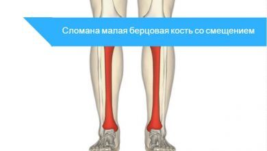 перелом берцовой кости со смещением
