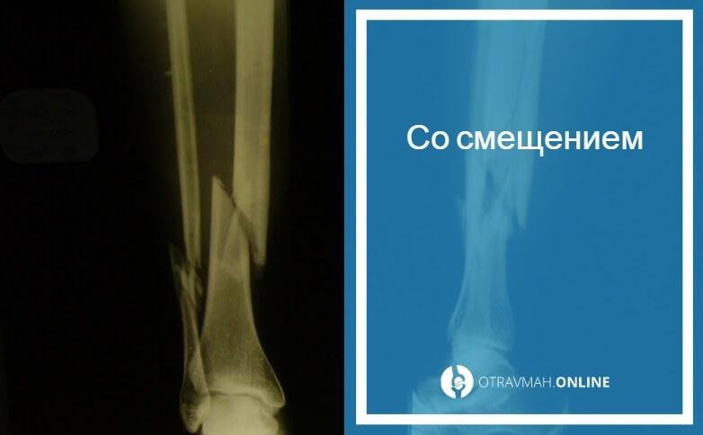 перелом большой берцовой кости со смещением операция