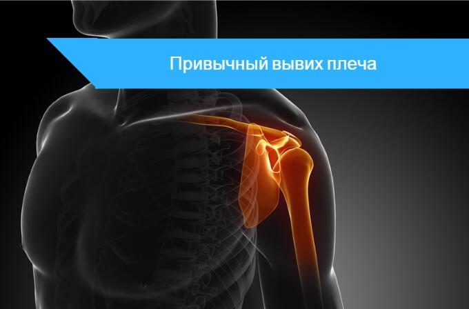 Лечебная гимнастика при вывихе плечевого сустава