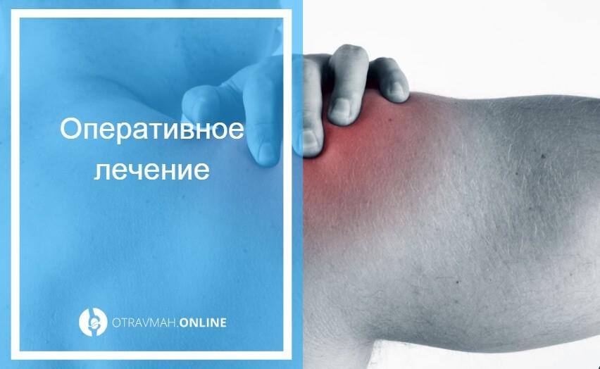 привычный вывих плеча упражнения для укрепления