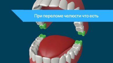 что можно есть при сломанной челюсти