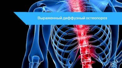 диффузный остеопороз поясничного отдела позвоночника