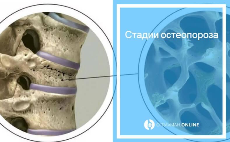 выраженный диффузный остеопороз