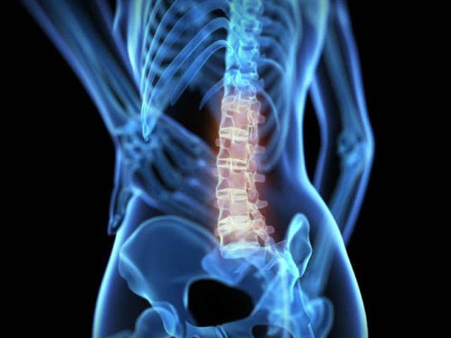 Реактивный артрит пятки симптомы и лечение
