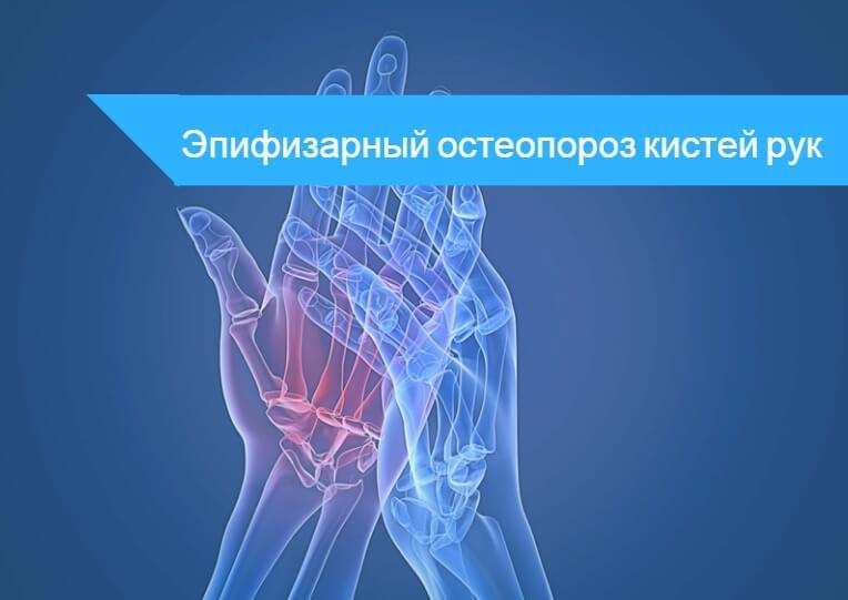 Лечение остеопороза кистей рук народные средства -