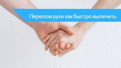 перелом руки лечение