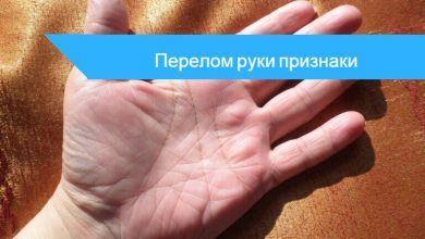 признаки перелома пальца на руке
