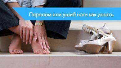 как узнатьушибили перелом на ноге