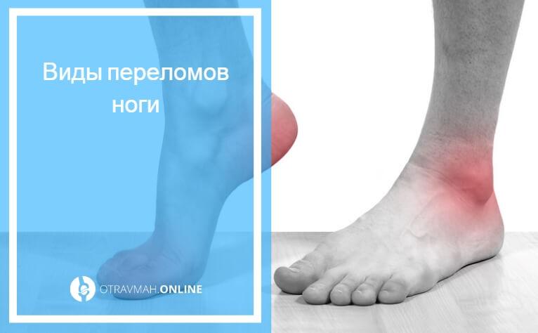 как узнатьушибили перелом ноги