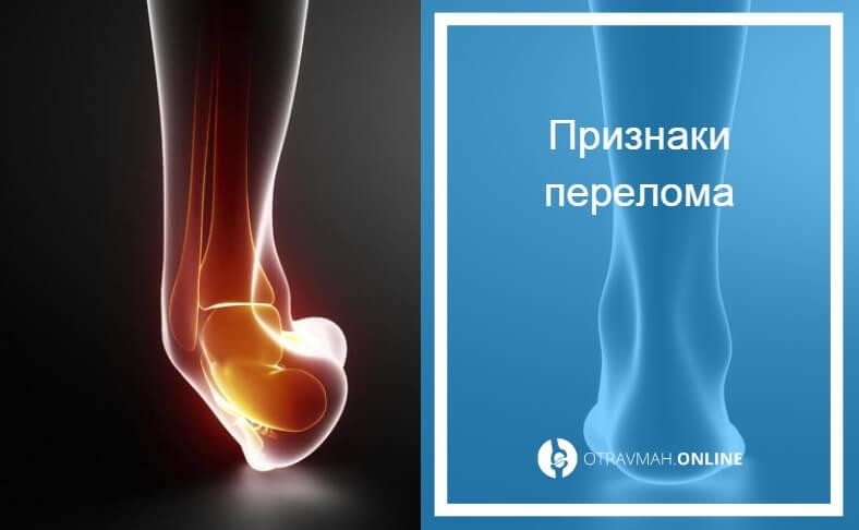 как узнать перелом или ушиб на ноге