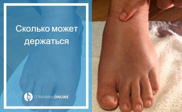 мазь от отеков на ногах после перелома