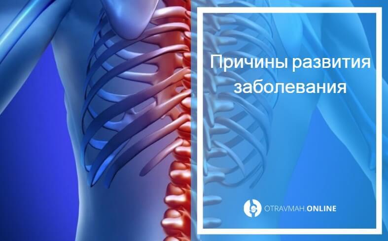 остеопороз шейного отдела позвоночника симптомы и лечение