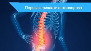 первые признаки остеопороза