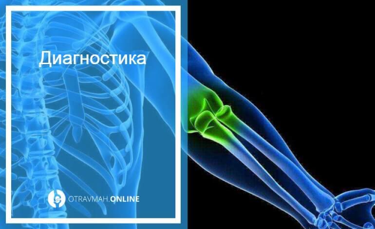 перелом предплечья кости со смещением