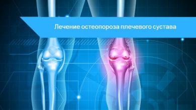 остеопороз коленного сустава симптомы и лечение