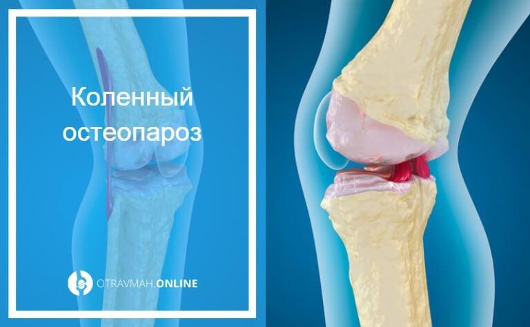 остеопороз голеностопного сустава симптомы и лечение
