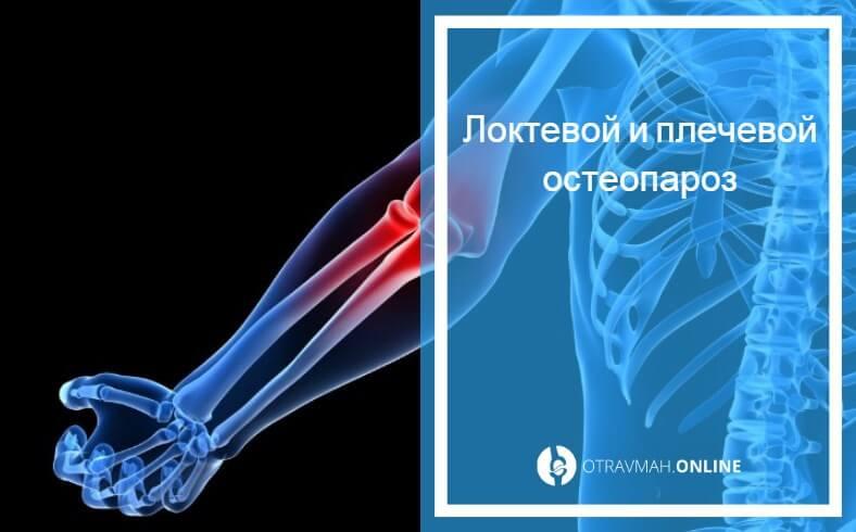 остеопороз тазобедренного сустава лечение