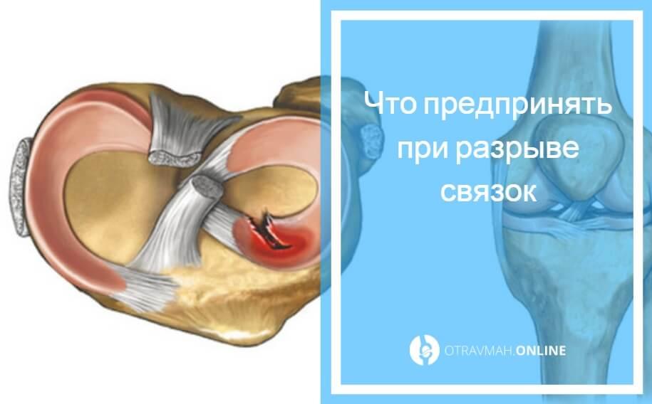 разрыв крестообразной связки колена симптомы