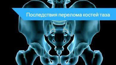 перелом тазобедренной кости последствия