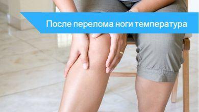 температура после перелома ноги