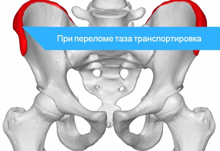 Первая помощь при переломе костей таза
