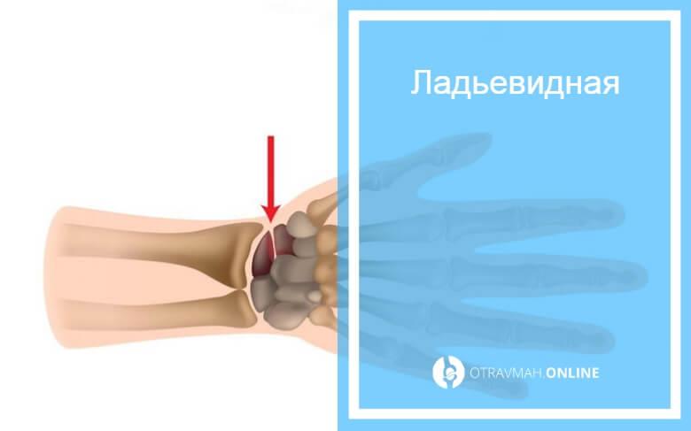 перелом руки в запястье симптомы